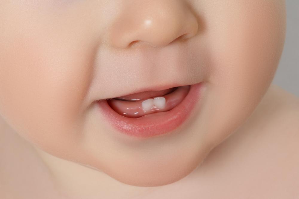 Loh, Baru Lahir Sudah Ada Giginya