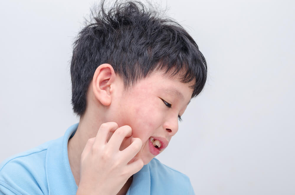 Kenali Alergi Makanan pada Anak